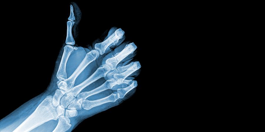 Thumb up, xray.